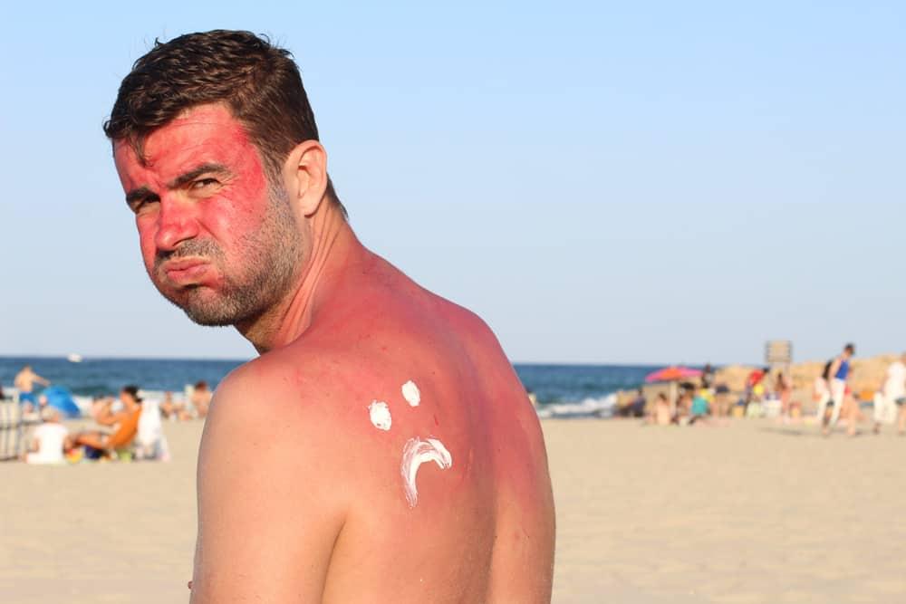 Natural Remedies for Sunburn